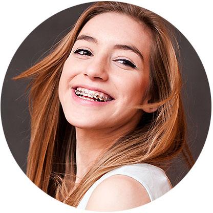 girl braces