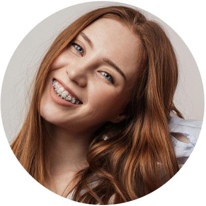 teen clear braces